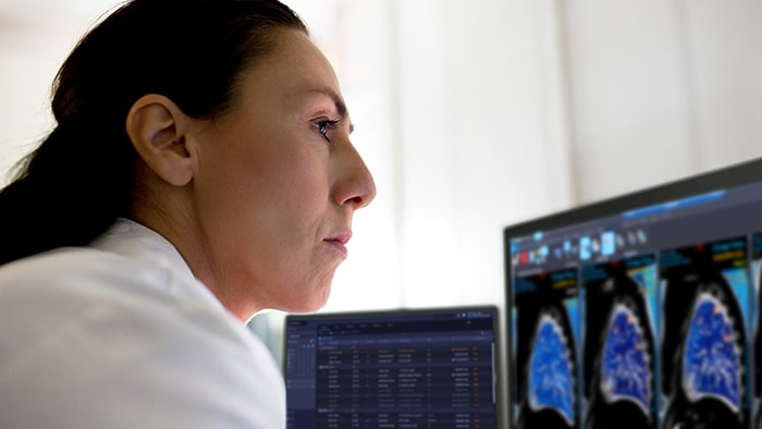 Accelerating development, deployment and ongoing improvement of AI for diagnostic imaging