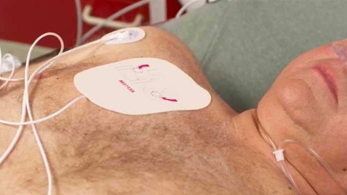 Non-Invasive Transcutaneous Pacing with the Efficia DFM100 monitor/defibrillator